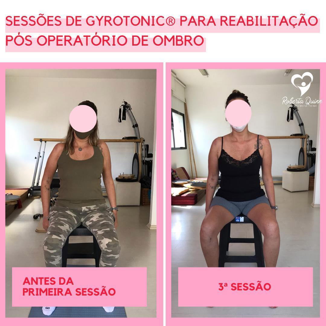 comparação dos efeitos entre as sessões de reabilitação do ombro